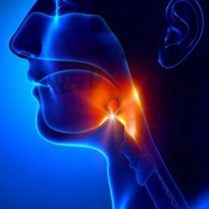 αcute purulent tonsillitis