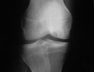 ostéochondrose (ostéochondrite)