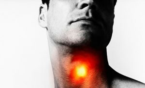 acute-pharyngitis
