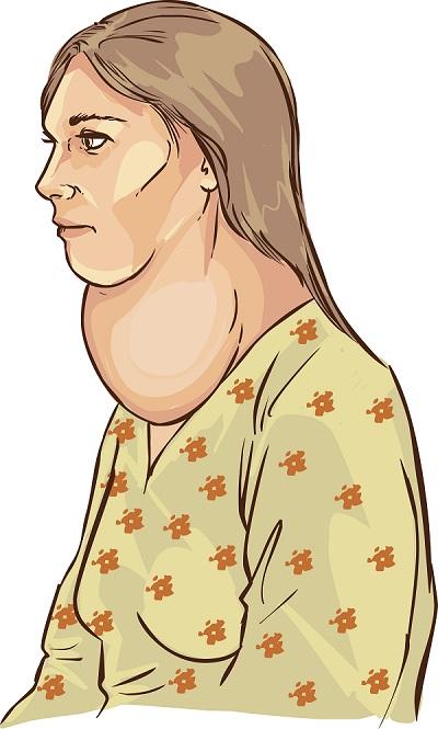 goitre et thyroïde