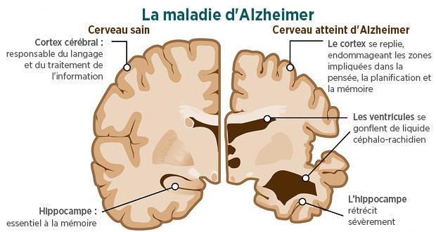 maladie alzheimer 1
